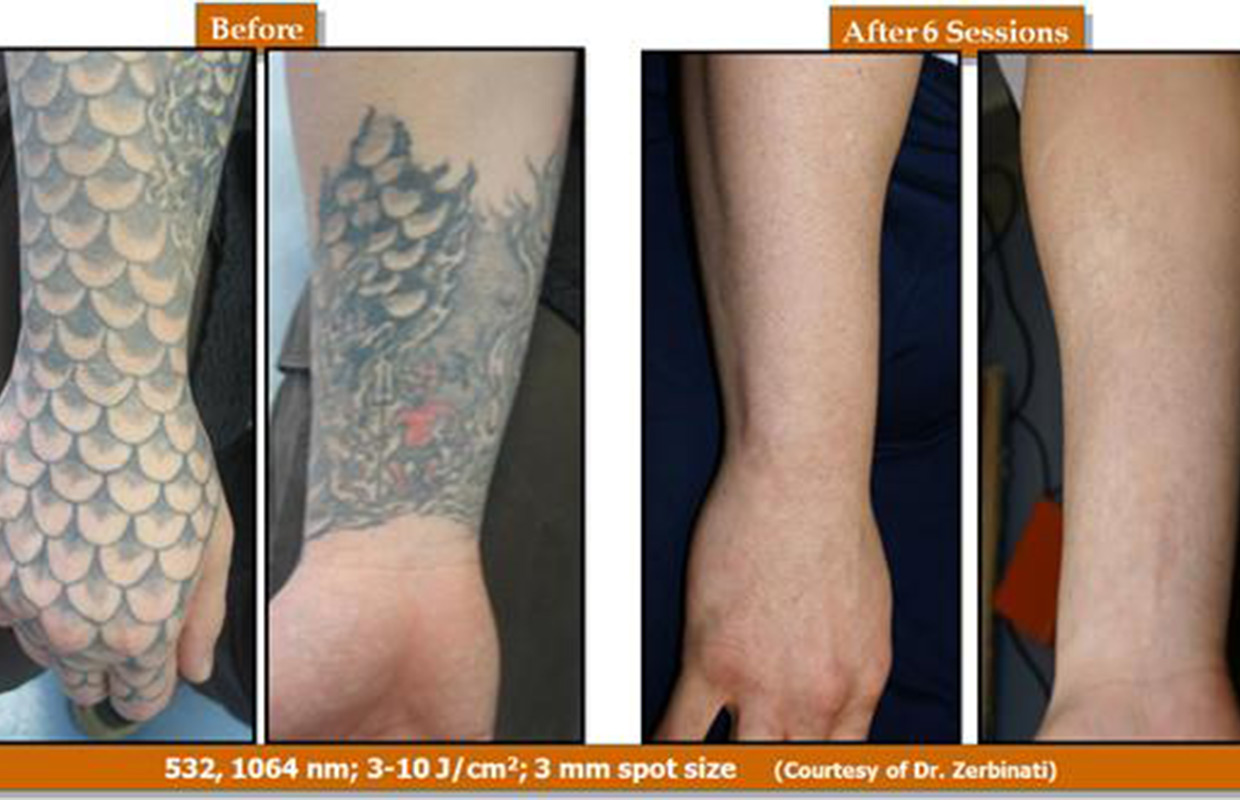 Removing tattoos just got faster for New tattoo removal technology