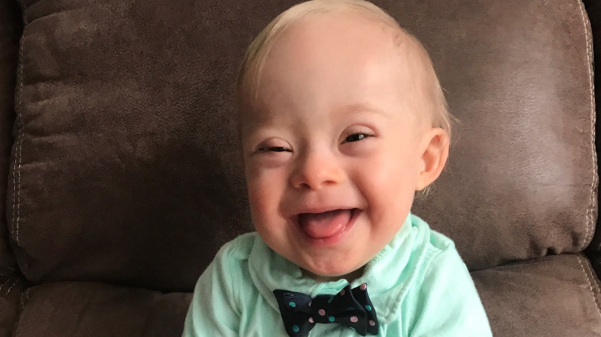 Boy with Down's Syndrome becomes face of United States baby food giant Gerber